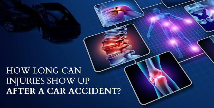How Long Can Injuries Show Up After A Car Accident?